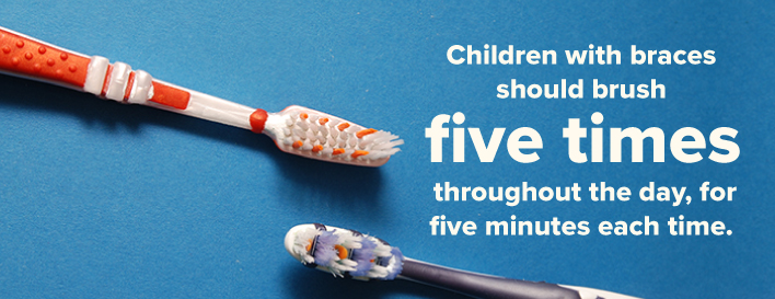 children with braces should brush five times a day