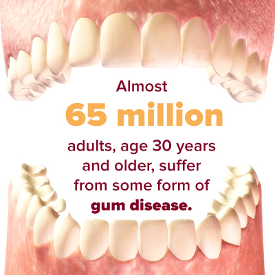 65 million adults suffer from gum disease