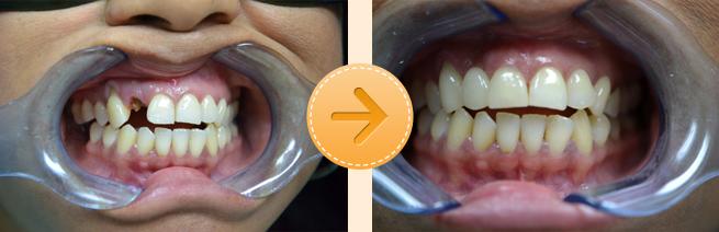 Anterior Bridge To Fix Broken Tooth